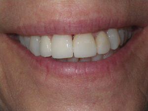 Actual implant dentistry patient of San Luis Obispo dentist Dr. Deborah McNeil-Amorteguy, DDS.